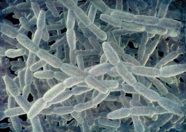 Precautionary Steps To Be Taken While Dealing With Legionella